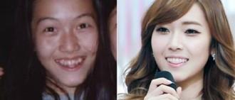 12張偶像擁有不完美的牙齒但你看到後總得感到她可愛的相片