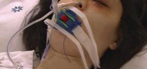 你永遠不會猜到這10個KPOP IDOL曾被診斷患有如此嚴重的疾病